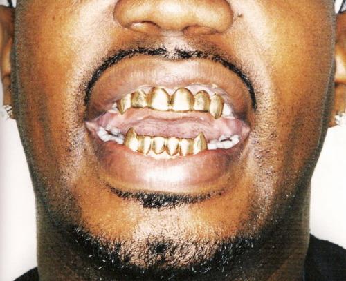 dientes-oro
