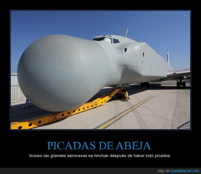 a-b-c-picadas_de_abeja
